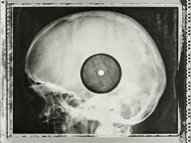 SOVIET-ERA BOOTLEG RECORDINGS OF BANNED WESTERN MUSIC PRESSED ON DISCARDED X-RAY PLATES